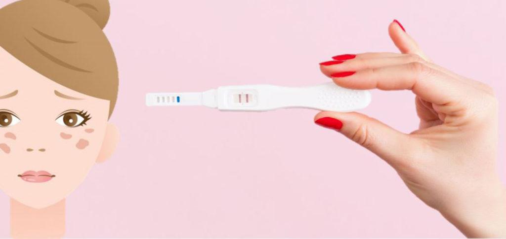 Zwangerschapsmasker - wat kun je doen aan zwangerschapsmasker - hannah blog