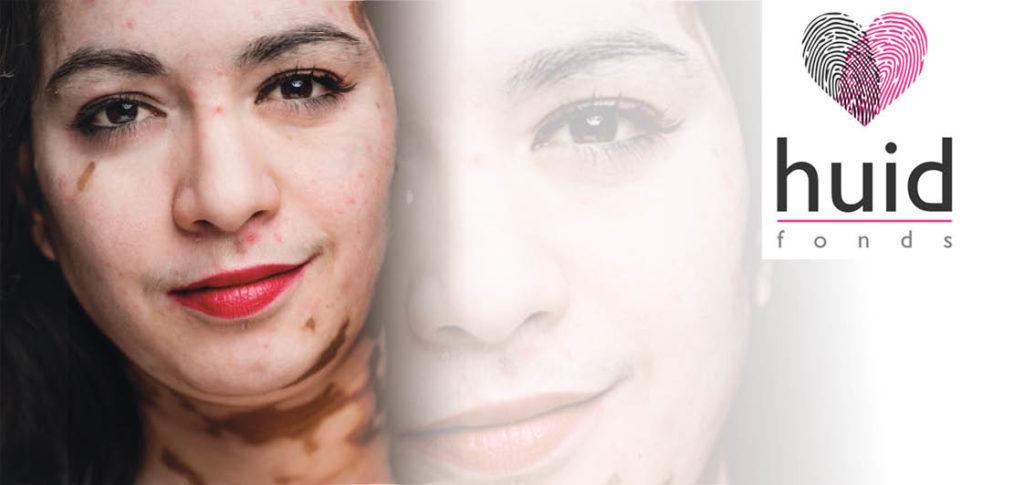 vitiligo_huidfonds_hannah